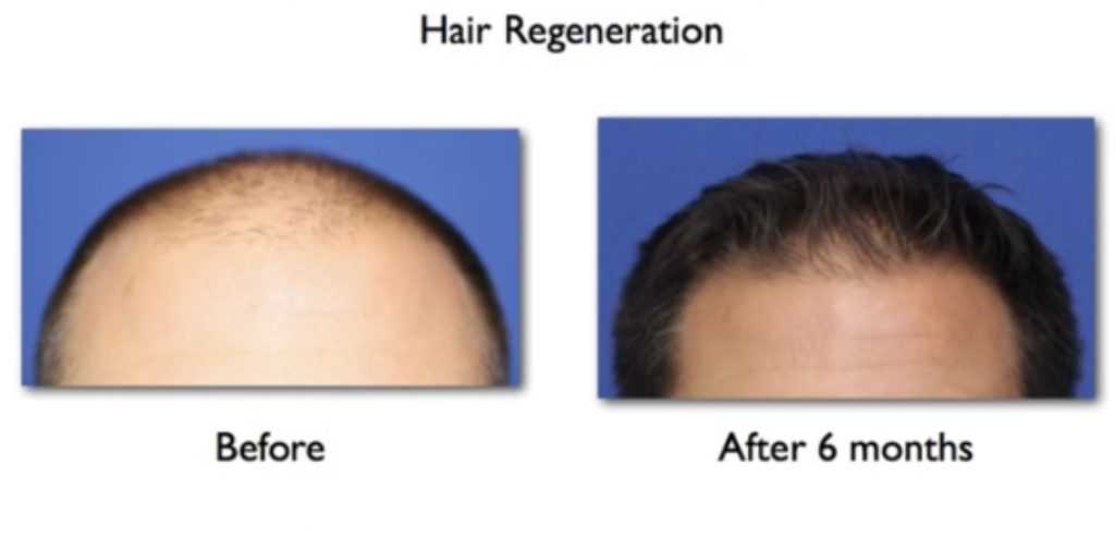 stem cells therapy for hair regrowth