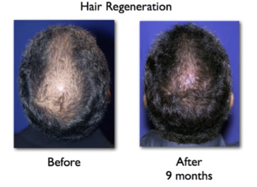 stem cell therapy for hair loss