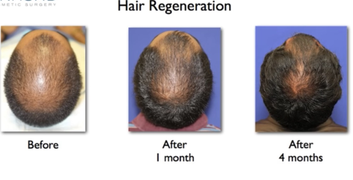 cell therapy for hair loss