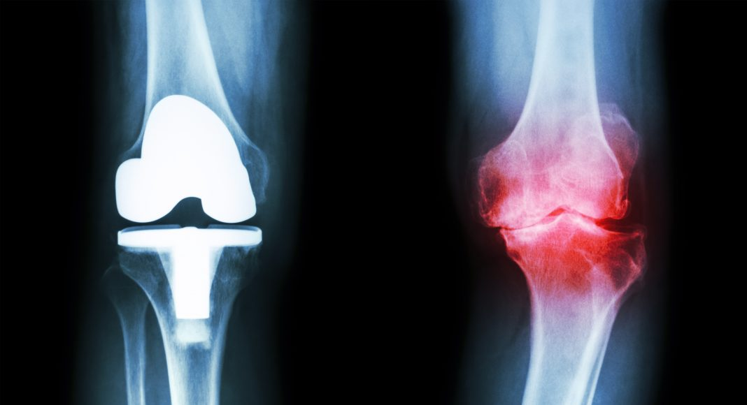 knee with severe osteoarthritis