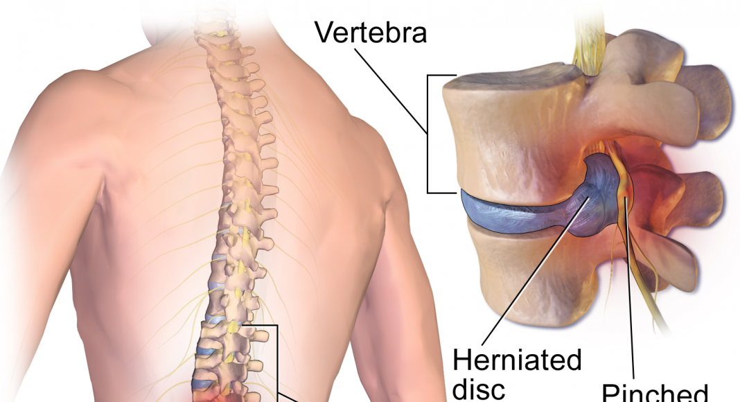 herniated disc pinched nerve paresthesia